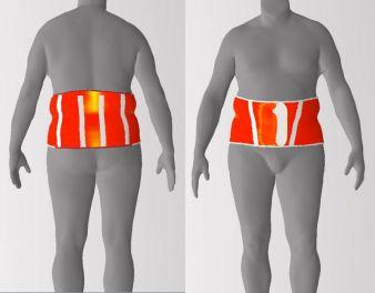 Darstellung des Körperabstandes: Gleichmäßiges Aufliegen der Orthese am Patienten ohne Hohlräume Photo: DITF-MR