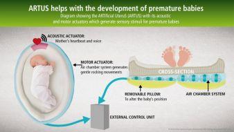 ARTUS unterstützt die Entwicklung von frühgeborenen Babys. Durch akustische und motorische Aktuatoren werden sensorische Reize für das Frühgebo...